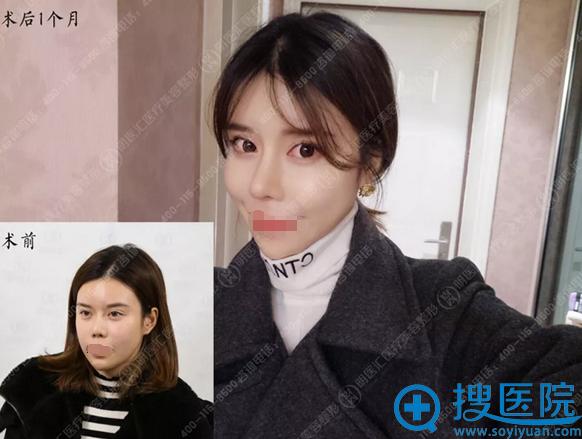 大连明医汇李耀宇鼻挛缩修复术后1个月恢复对比照