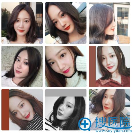 在上海百达丽做完鼻子5个月了