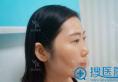 在深圳军科整形医院找刘月更做了假体隆鼻看我手术前后变化大吗