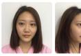 帮我看看上海百达丽韩嘉怡给我做的鼻综合隆鼻案例效果好不好