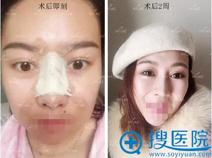 张晨隆鼻手术后恢复期照片