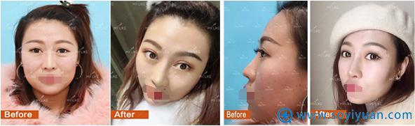 沈阳美莱张晨网红鼻术前术后对比照片