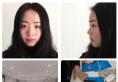 南京施尔美刘道功医生怎么样?花一万多元做的膨体隆鼻案例分享