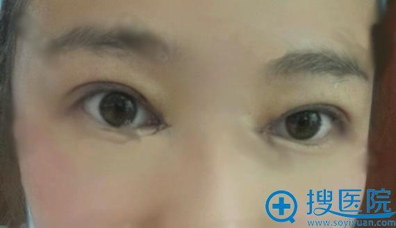 刚做完双眼皮和内眼角手术