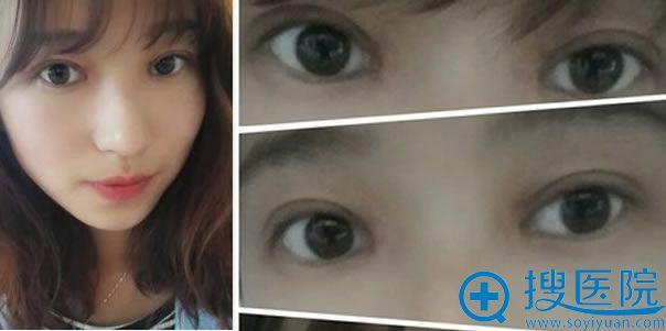 双眼皮手术21天恢复情况