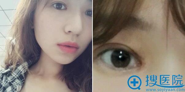 双眼皮手术1个月特写