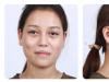 上海时光何晋龙磨骨怎么样?花8万元做下颌角的真实经历告诉你