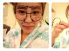 上海天大刘先超怎么样?看我做的全脸自体脂肪填充和隆鼻案例图