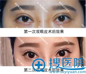 二次双眼皮手术失败后照片