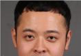 【日记】看西安高一生整形医院张林宏院长做的双眼皮案例怎么样