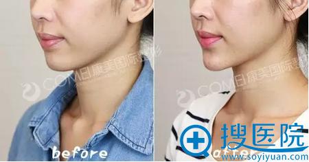 南京康美硅胶假体垫下巴侧面对比照片