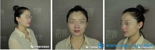 四川西婵玻尿酸填充面部+面部综合提升术前