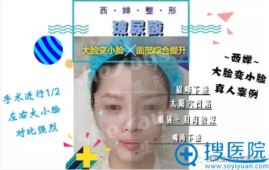 廖茄利玻尿酸填充面部左右脸对比
