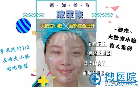 廖茄利面部综合提升左右脸对比