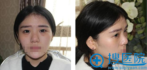 假体隆鼻+鼻头缩小术前照