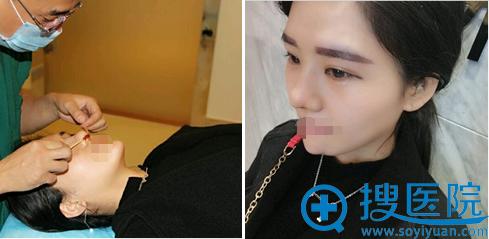 假体隆鼻+鼻头缩小术后3天效果