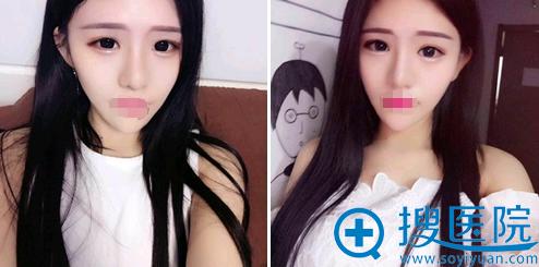 苏鹏假体隆鼻+鼻头缩小术术后半年恢复效果