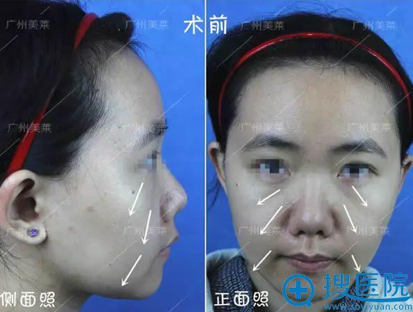 在广州美莱整形医院做面部线雕术前照