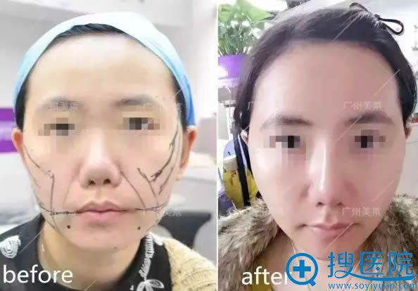 线雕隆鼻和面部提升前后对比效果