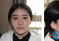 西安施尔绮苏鹏隆鼻案例:假体隆鼻+鼻头缩小术后半年效果展示