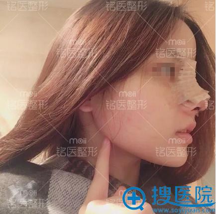 深圳铭医肋软骨全鼻整形术后侧脸效果