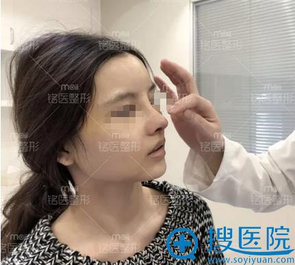 肋软骨全鼻整形+自体脂肪填充全脸拆线效果