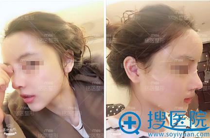 肋软骨隆鼻+面部脂肪填充术后恢复情况