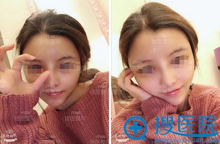 深圳铭医肋软骨隆鼻+脂肪填充面部术后生活照