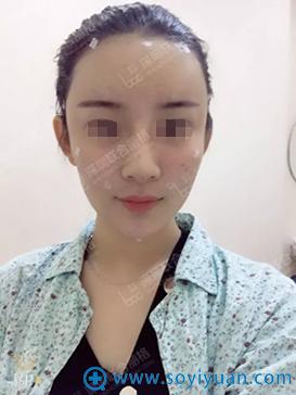深圳联合丽格裴菁脂肪填充面部术后即刻