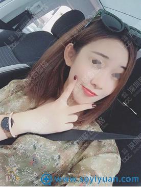 深圳联合丽格裴菁自体脂肪填充面部40天效果