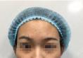 深圳联合丽格裴菁自体软黄金脂肪填充全面部术后恢复过程图