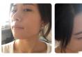 看妹子找上海天大刘先超做的下颌角磨骨案例效果怎么样