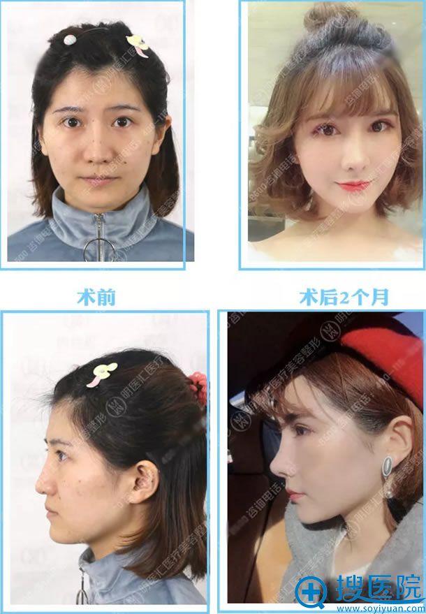大连明医汇刘威肋软骨鼻综合案例