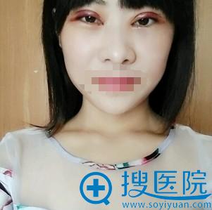 刘育凤双眼皮修复术后2天恢复情况