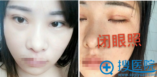 刘育凤全切双眼皮术后1个月睁眼闭眼效果