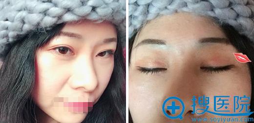 刘育凤双眼皮修复术后半年睁眼闭眼照片