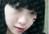 深圳米兰柏羽进口BOTOX瘦脸针优势及真人案例效果分享