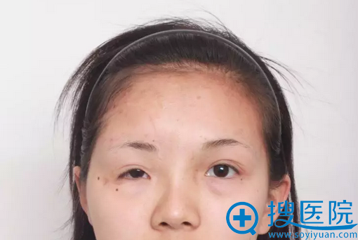 瘢痕切除和眼提肌手术术后效果
