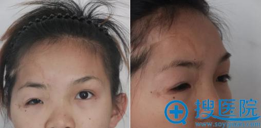 新疆千禧丽人修复手术术前照片