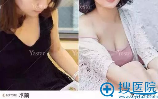 大连yestar自体脂肪丰胸术前术后对比