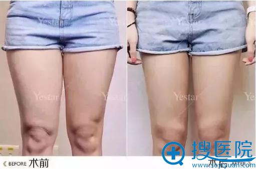 大连yestar整形美容医院大腿吸脂术后对比