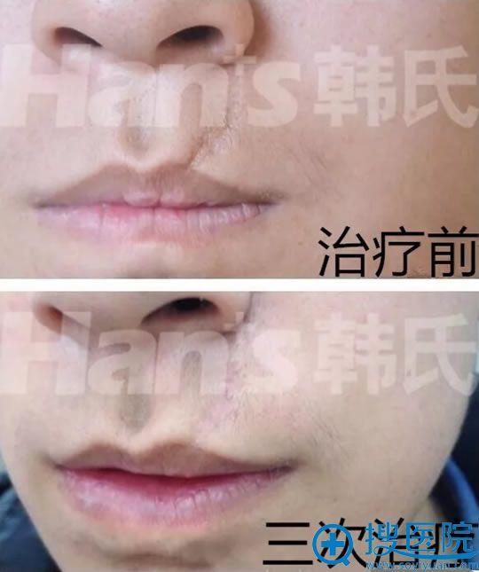 王丽华祛嘴唇疤痕真人案例