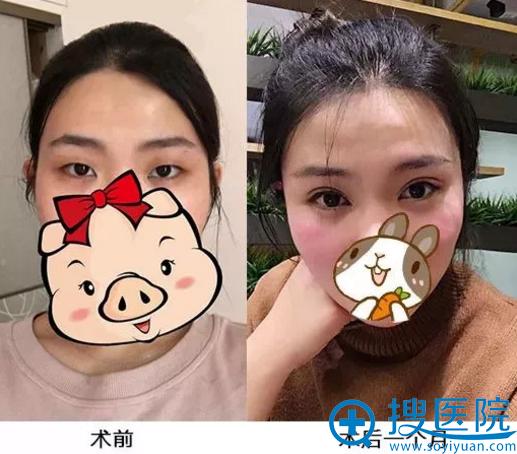 杭州悦可整形员工做眼睛1个月对比图