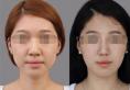 长沙星雅张光辉做鼻子多少钱 2018跨年盛宴隆鼻价格低至1280元