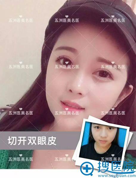 北京五洲整形李峰双眼皮真人案例