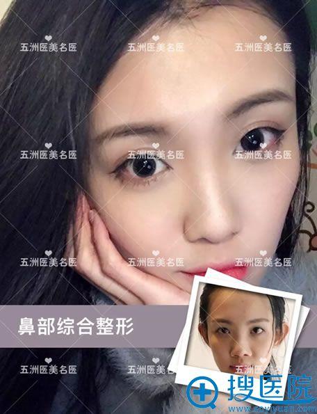 北京五洲李峰鼻综合整形案例