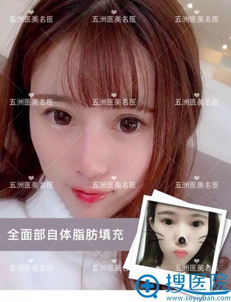 北京五洲林秀莲自体脂肪填充全脸案例