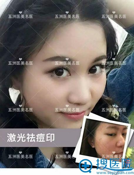 北京五洲田玉娟激光祛痘印案例