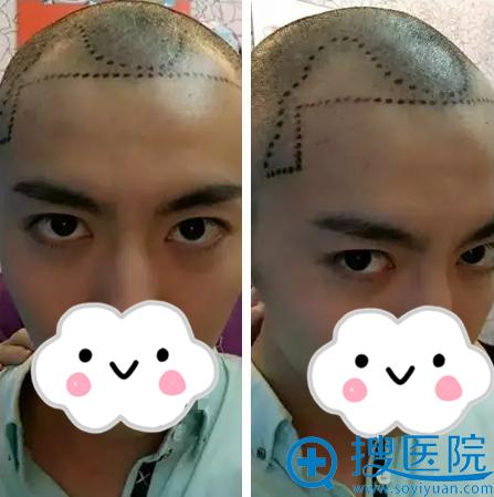 毛发移植术前发际线设计
