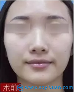 西安美好鼻部综合整形术前照